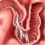 Verklevingen binnenin de darmen