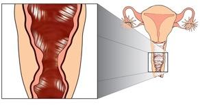 genitaleverminking